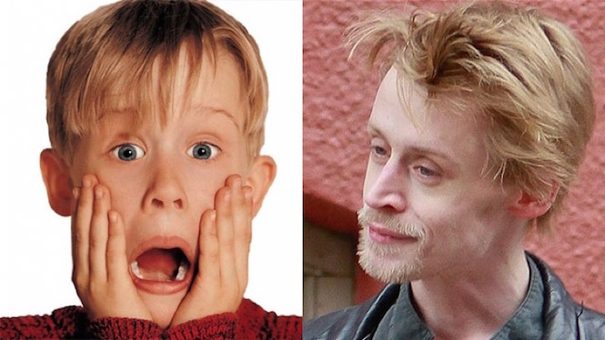1-celebs-before-after-drugs