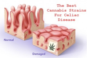 cannabisceliacdisease